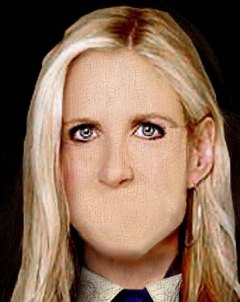 coulter-mouth-wired-shut